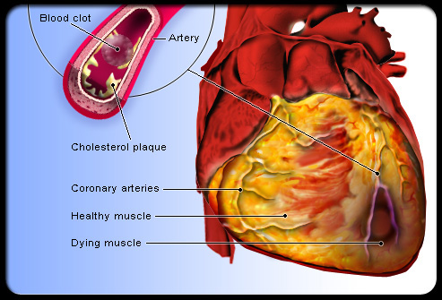 heart attack pictures. heart disease is the
